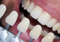 smiles-protetica-dentara-670x300