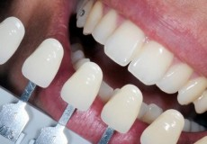 smiles-protetica-dentara
